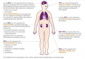 Bild till TSC kroppen